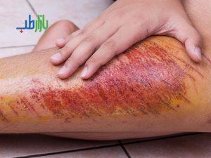 درمان عفونت سوختگی