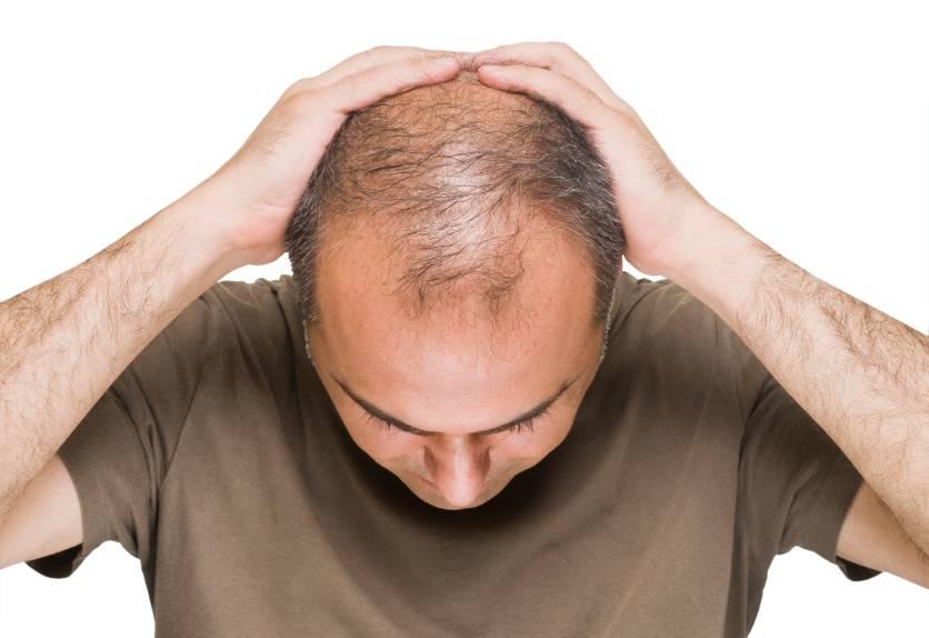 با این روش ها از ریزش مو جلوگیری کنید