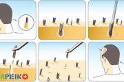 مزایا و معایب کاشت مو با روش FIT و FUT
