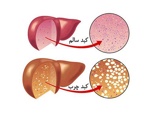 بیماری کبد چرب و راه حل درمان آن چیست؟