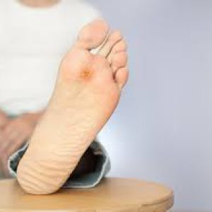 قطع پای دیابتی