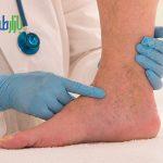 درمان زخم عروقی