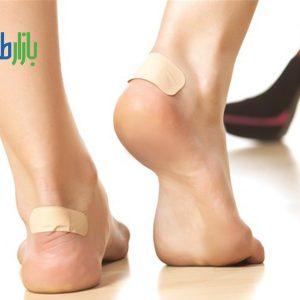 پیشگیری و درمان تاول