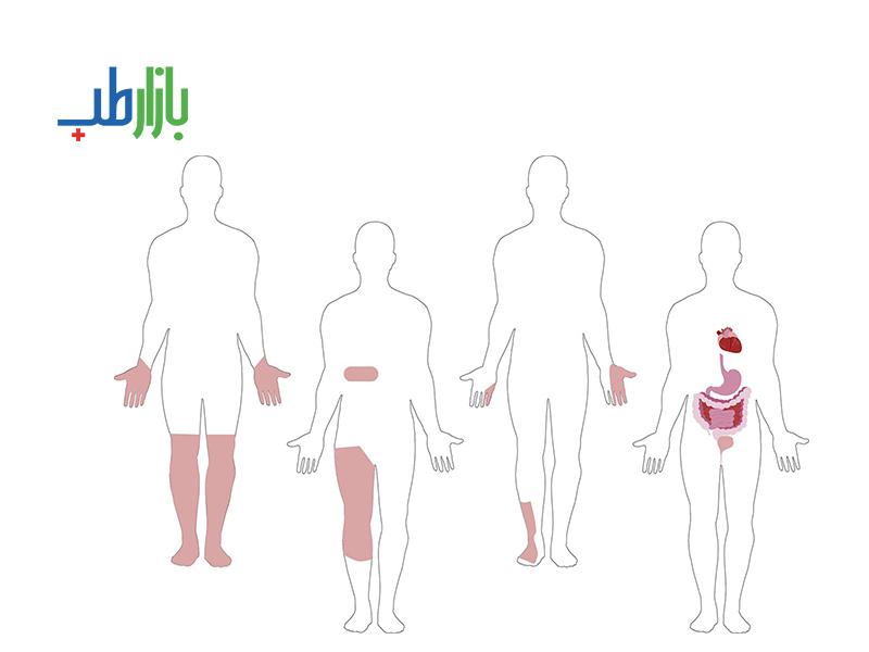نوروپاتی دیابتی
