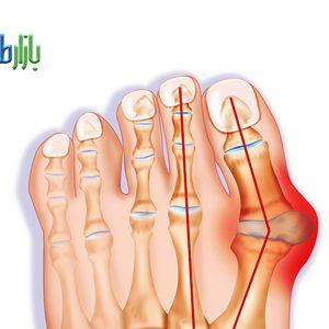 درمان پینه پا