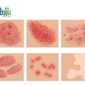 عفونت پوست چیست