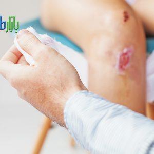درمان زخم اطفال