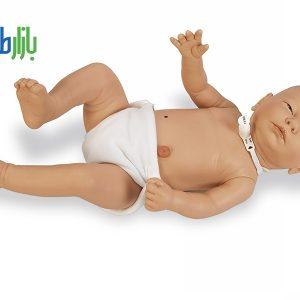 کلستومی نوزادان