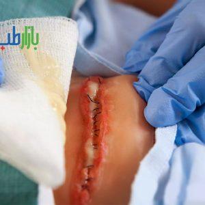 ترشحات زخم جراحی