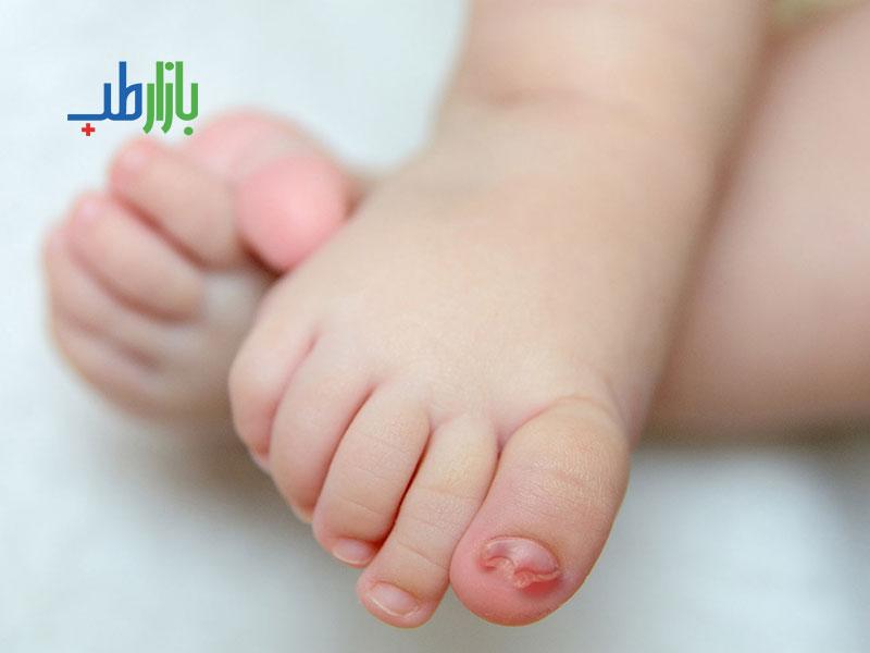 بیماری ناخن در نوزادان