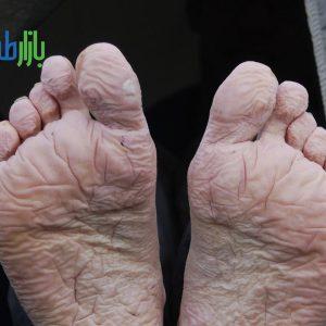 سندرم پا خندقی