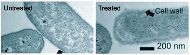 تاثیر پانسمان کلاژن سوختگی طبابرن تریتا