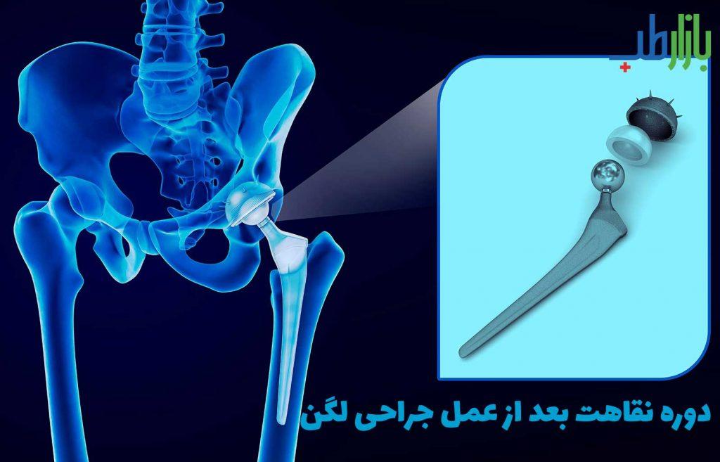 عمل جراحی لگن