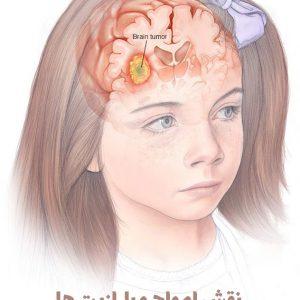 نقش امواج و پارازیت ها در ایجاد تومورهای مغزی در کودکان