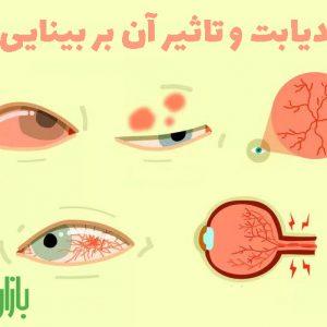 دیابت و تاثیر آن بر بینایی
