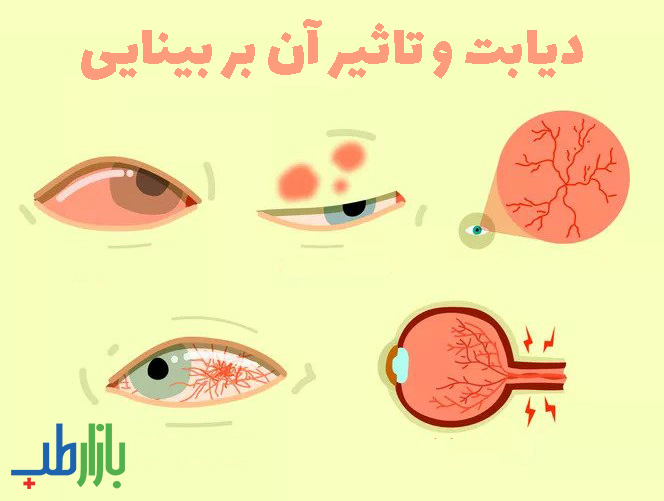 تاثیر دیابت بر بینایی