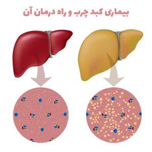 بیماری کبد چرب و راه درمان آن