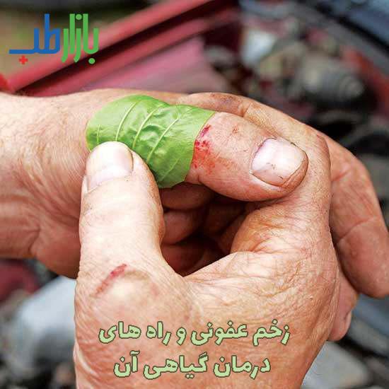 درمان گیاهی زخم عفونی