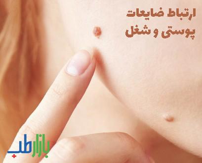 ضایعات پوستی