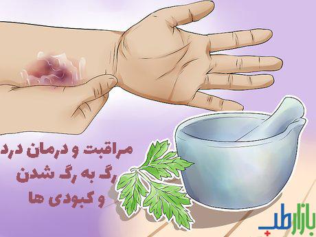 مراقبت و درمان درد رگ به رگ شدن و کبودی ها