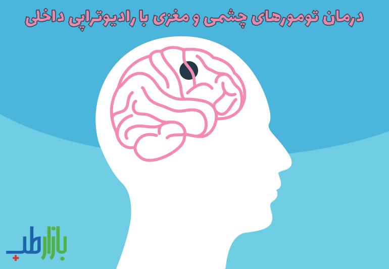 تومورهای چشمی و مغزی