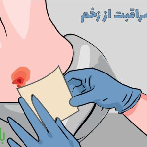 مراقبت از زخم