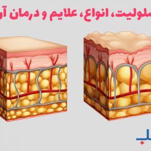 سلولیت، انواع، علایم و درمان آن