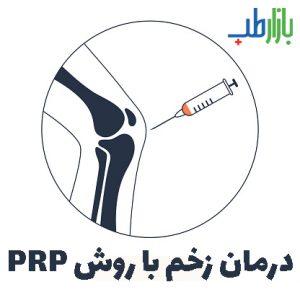 درمان زخم با روش PRP