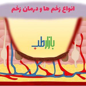 انواع زخم ها و درمان زخم