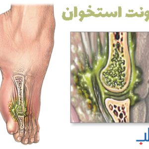 عفونت استخوان