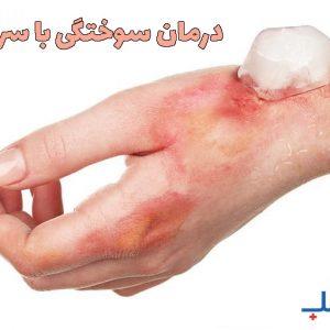 درمان سوختگی با سرما