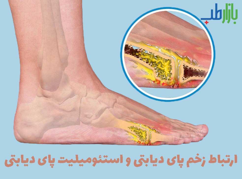 زخم پای دیابتی و استئومیلیت