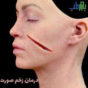 درمان زخم صورت