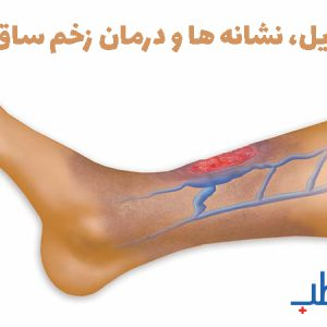 دلایل، نشانه ها و درمان زخم ساق پا
