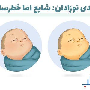 زردی نوزادان: شایع اما خطرساز