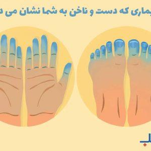 بیماری که دست و ناخن نشان می دهند