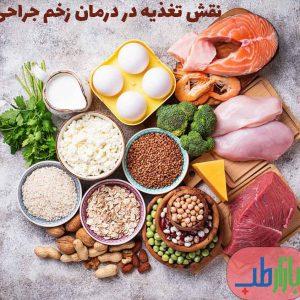 نقش تغذیه در درمان زخم جراحی