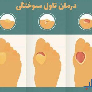 درمان تاول سوختگی