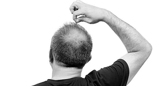 3 باور غلط درباره کاشت مو