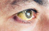 نکاتی درباره چشم هایتان