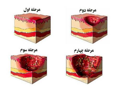 مراحل ایجاد زخم بستر | از علائم تا پیدایش