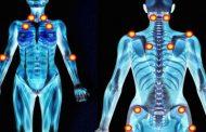آشنایی با فیبرومیالژیا