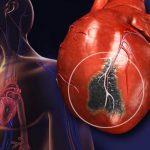 نکاتی درباره حمله قلبی