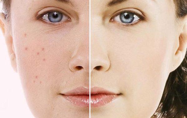 ارتباط ضایعات پوستی و شغل