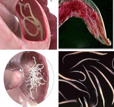 بیماری کرمک یا اکسیور؛ علائم و درمان