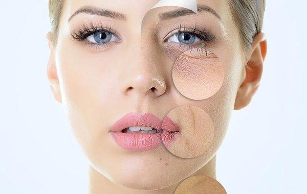 خشکی پوست میتواند علامت ۴بیماری جدی باشد!