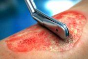 درمان های نوین زخم بستر