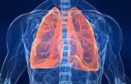 علائم ضعیف شدن ریه را بشناسید!