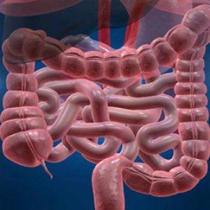 کولیت السروز و کرون، بهعنوان بیماریهای التهابی روده شناخته میشوند.