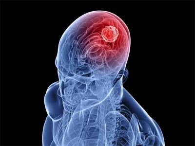 امواج و پارازیت ها؛ نقش آنها در ایجاد تومورهای مغزی در کودکان